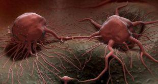 علاج السرطان , كيفيه التخلص من السرطان