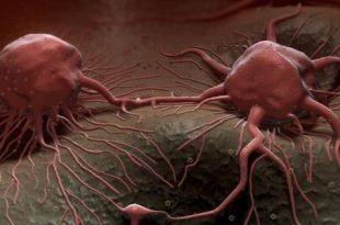 صور علاج السرطان , كيفيه التخلص من السرطان
