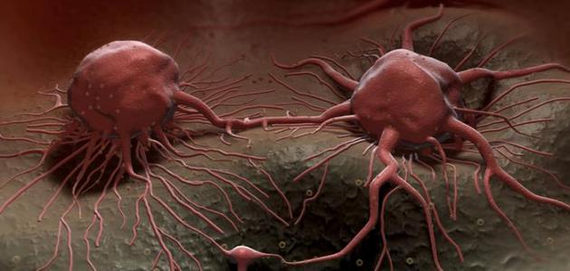 صورة علاج السرطان , كيفيه التخلص من السرطان