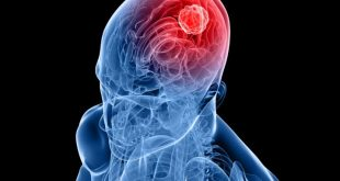 صور اعراض سرطان الدماغ , اعراض اورام الدماغ