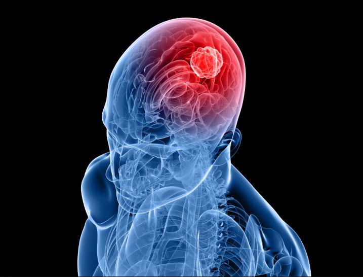 صورة اعراض سرطان الدماغ , اعراض اورام الدماغ