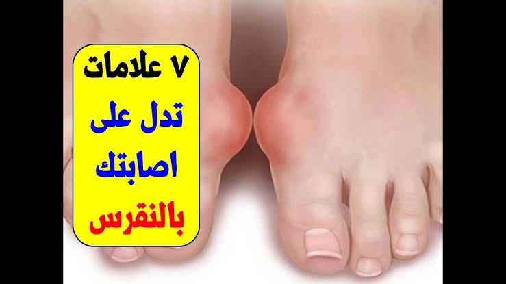 صورة ماهي اعراض مرض النقرس , علامات تشير الي الاصابه بالنقرس