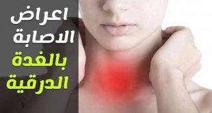 صور مرض الغدة الدرقية , مشاكل الغده الدرقيه وعلاجها
