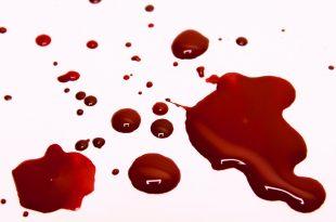 صورة تفسير حلم خروج الدم من الفم , خطورة الدم في الحلم