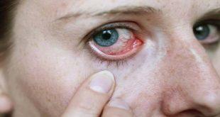 علاج حساسية العين , كيفيه التخلص من حساسيه العين