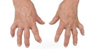 صورة مرض الروماتويد بالصور , اسباب مرض الروماتويد واعراضه