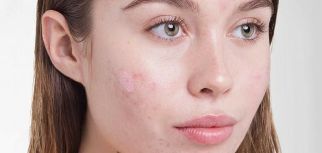 صورة حساسية في الوجه , أسباب حساسية البشرة