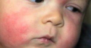 حساسية في الوجه , أسباب حساسية البشرة