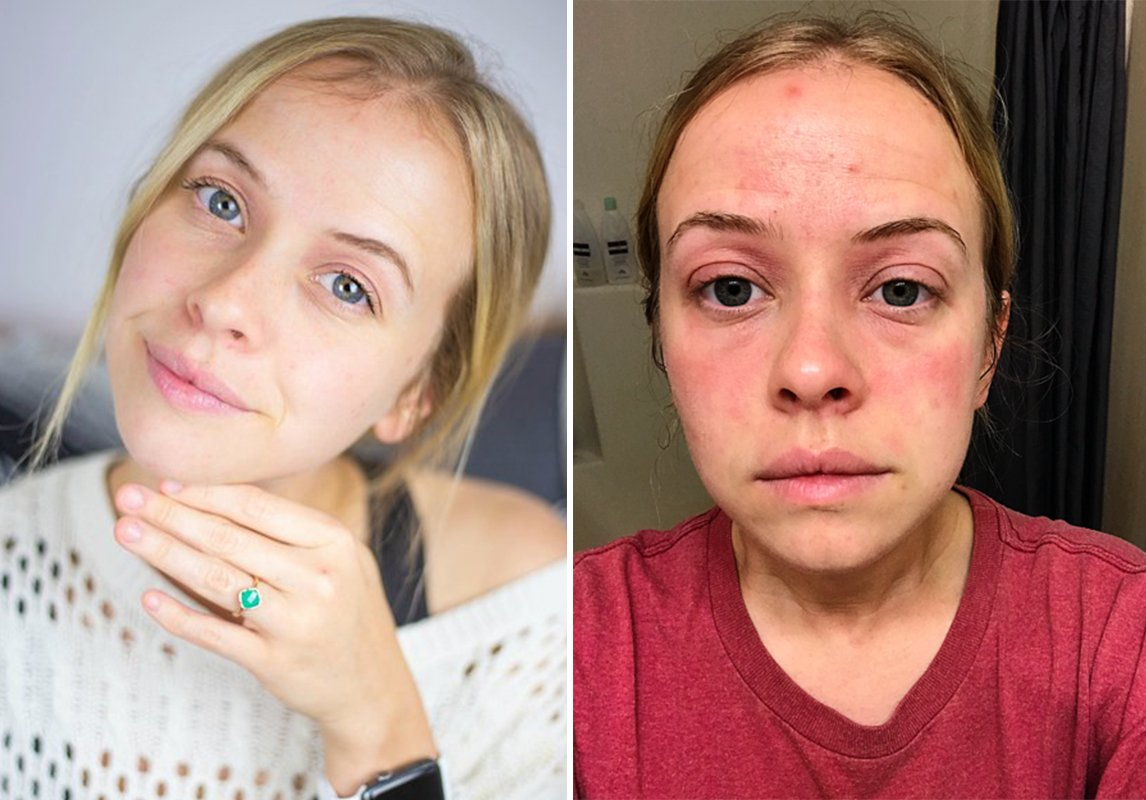 صورة الاكزيما في الوجه, اعراض الإكزيما وطرق علاجها