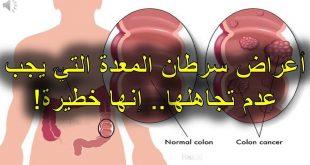 هل سرطان المعدة خطير , اعراض مرض السرطان