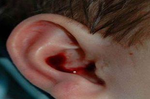 صورة خروج دم من الاذن , نزيف الاذن