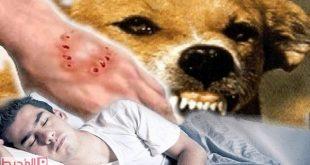 صورة دلالات تفسيرية لعضة الكلب فى المنام , تفسير الاحلام عضة الكلب
