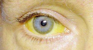 صورة كيف تعرفين اصابتك بمرض الصفار , اعراض مرض بوصفير