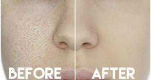 صورة عملتها لصبحتى ووشها كان بينور بعدها,علاج مسامات الوجه والانف