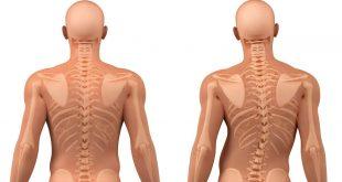 صورة علاج انحراف العمود الفقري بدون جراحة , سبب التهاب العمود الفقري
