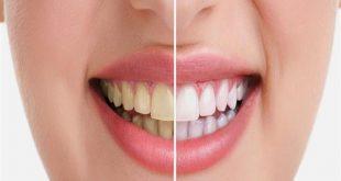 التخلص من صفار الاسنان , طريقة تنظيف الاسنان