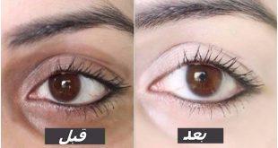 الهالات السوداء تحت العين عند البنات