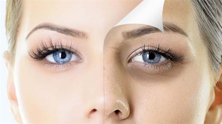 صورة الهالات السوداء تحت العين اسبابها وعلاجها , علاج فعال للهالات السوداء تحت العين 8824